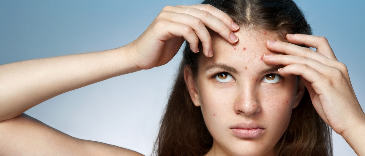Acne and Pimples:<br>Prevention &amp; Treatment